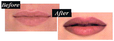lip liner and lip color permanent makeup photos before and after